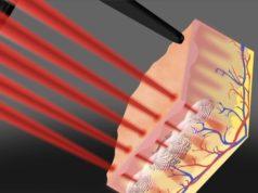 фракционное лазерное омоложение лица